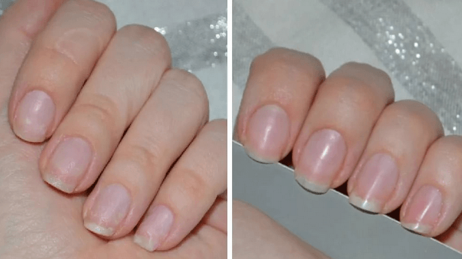 Укрепление ногтей до и после
