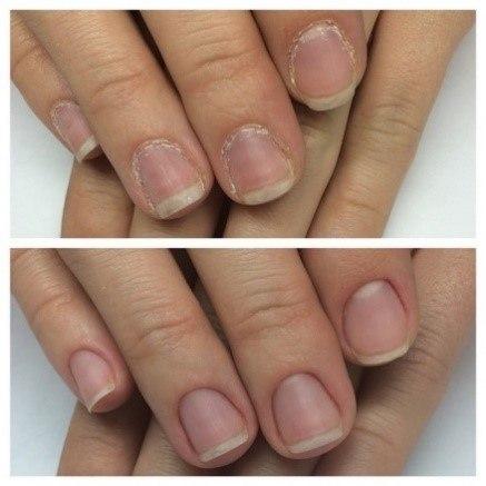 Акриловое укрепление ногтей фото