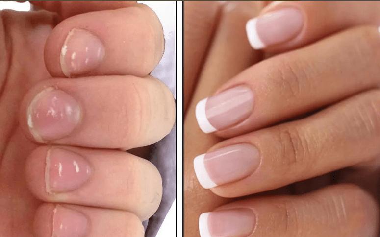 Результат акрилового укрепления ногтей