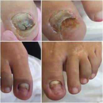 Парамедицинский педикюр при грибке ногтей