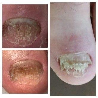 микозная чистка грибка ногтей