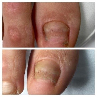 механическая чистка грибка ногтей
