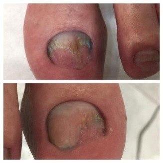 зачистка грибка ногтей