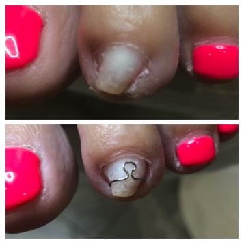 Коррекция вросшего ногтя протезом