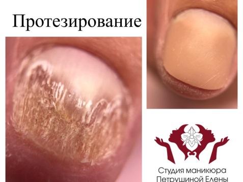 Исправление вросшего ногтя протезированием
