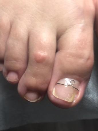 Протезирование вросшего ногтя жесткое