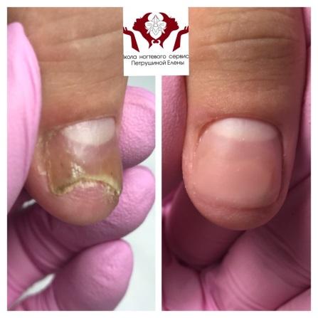 Протезирование вросшего ногтя