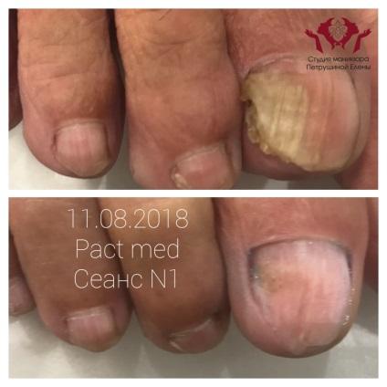 PACT Med вросший ноготь