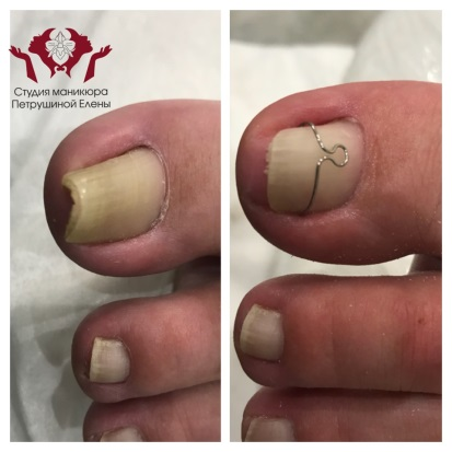 Скоба на вросшем ногте