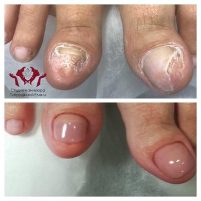 Исправление вросшего ногтя протезом
