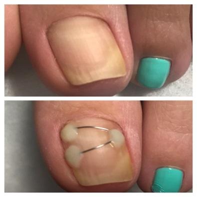 Исправление вросшего ногтя скобой