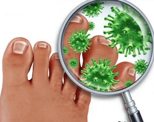 Микозная чистка ногтей