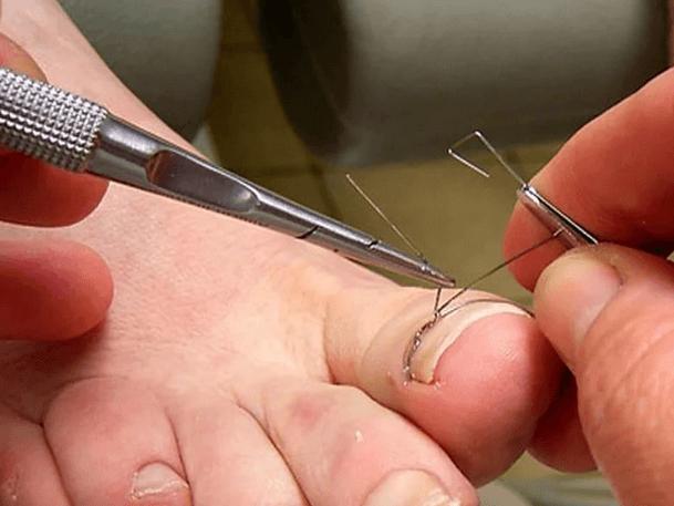 Лечение вросшего ногтя титановой нитью