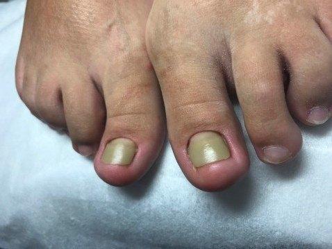 Лечение вросшего ногтя жестким протезированием