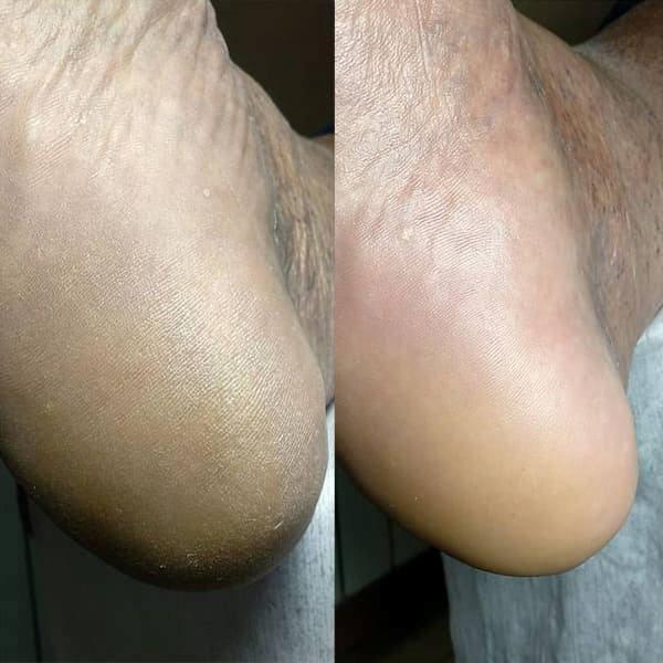 Кислотный педикюр до и после