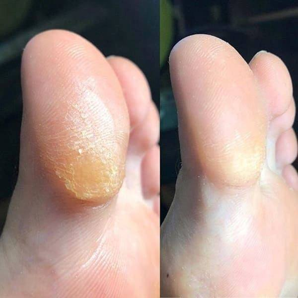 Кислотный педикюр большого пальца