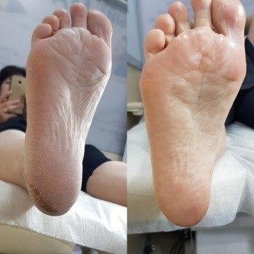 Кислотный педикюр стопы