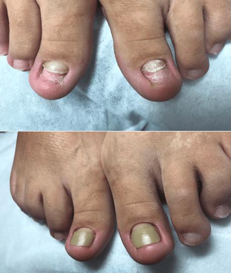 лечение вросшего ногтя жестким протезирование