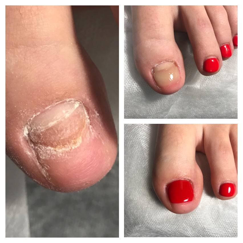Лечение вросшего ногтя мягким протезированием